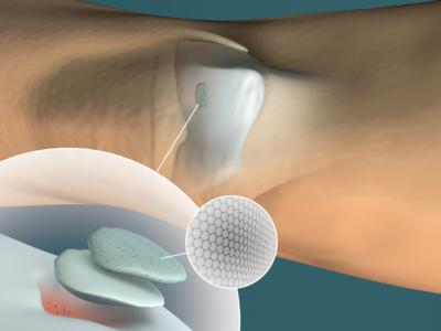 Medicina rigenerativa, creato un idrogel a doppio strato